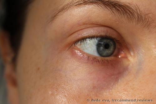 DNA Eye Balm
